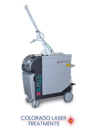 Quanta Q Plus Tattoo Removal