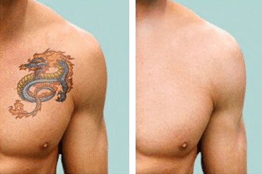 Tattoo removal results Longmont Colorado