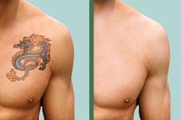 How Laser Tattoo Removal Works | Laser Treatment In Boulder & Longmont